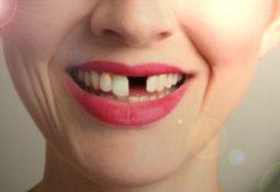 dişlerin dökülmesi 255x175 - Rüyada Dişlerin Düşmesi